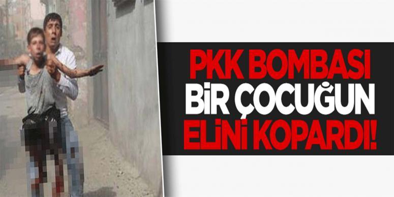 Cizre'de PKK bombası bir çocuğun elini kopardı!