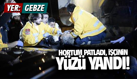 Çalıştığı sırada elindeki hortum patladı, işçinin yüzü yandı!