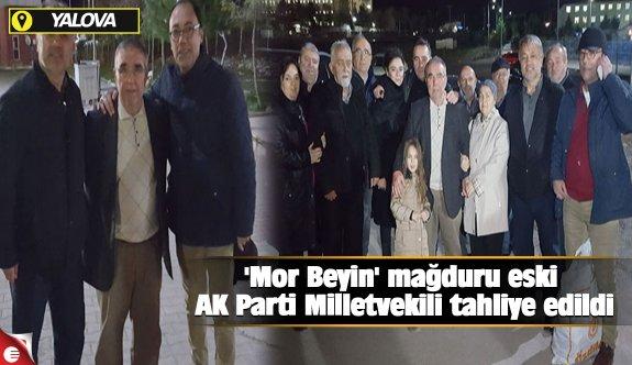 'Mor Beyin' mağduru eski AK Parti Milletvekili tahliye edildi